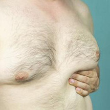 Gynecomastia (Male Breast Reduction)