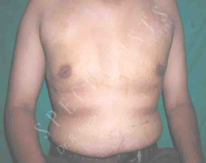 After-Gynaecomastia