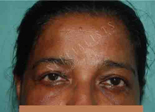 After-Blepheroplasty