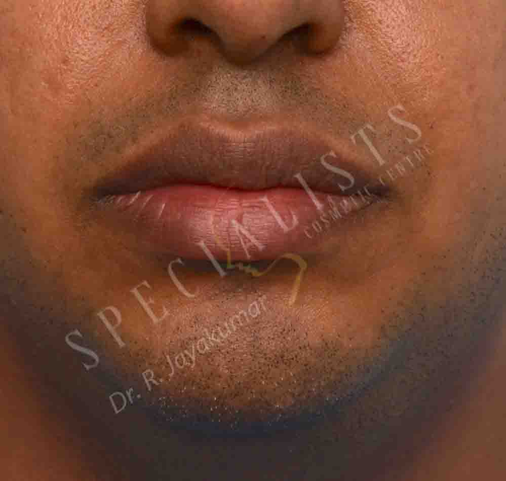 Before-Lip Reduction