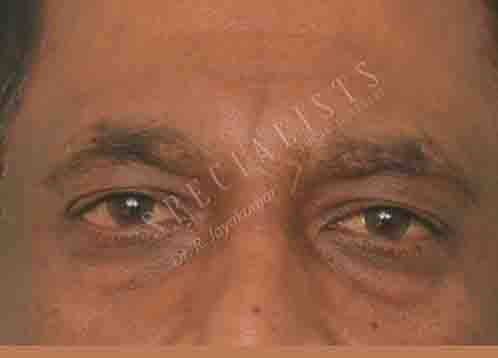Before-Blepheroplasty