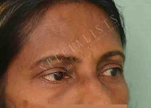 After- Blepheroplasty
