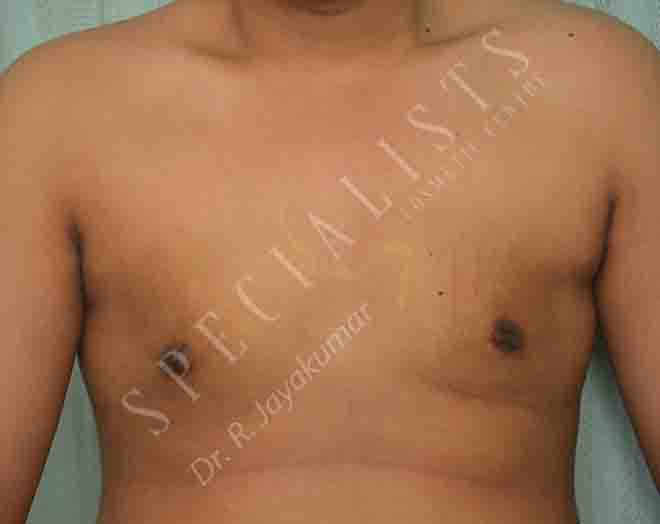 After- Gynaecomastia