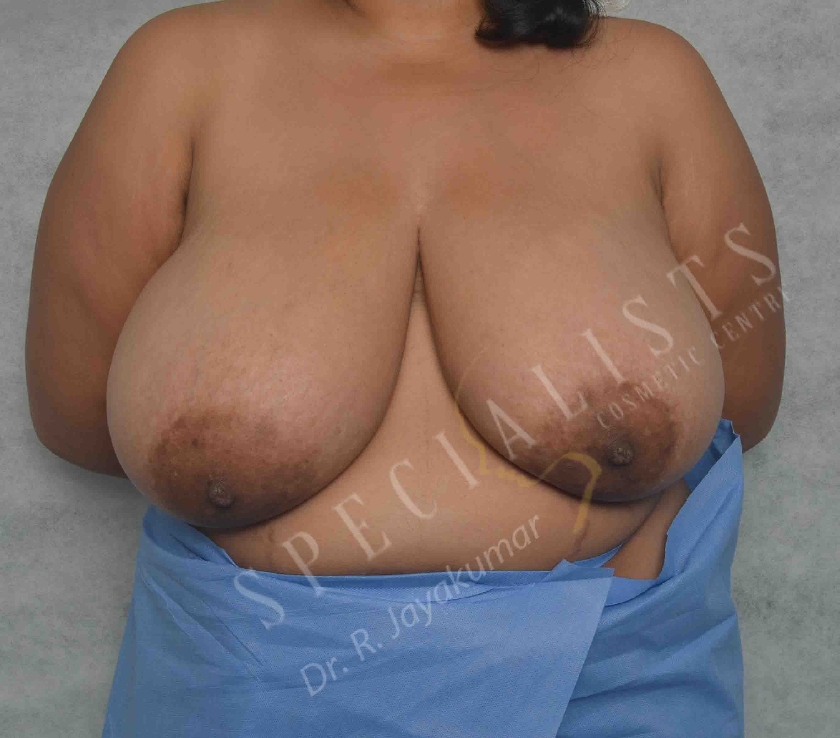Before- Breast Reduction