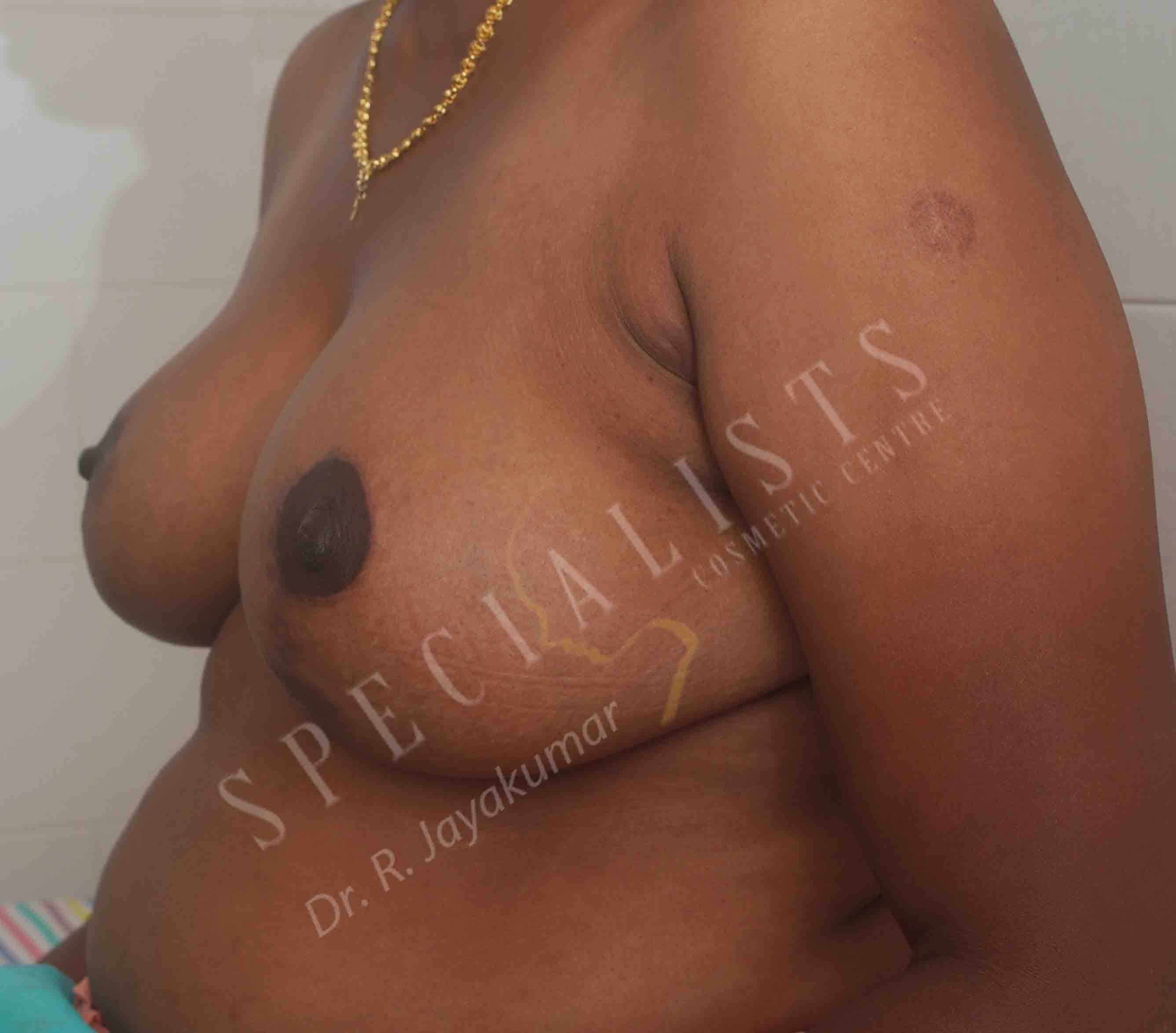 After- Breast Reduction