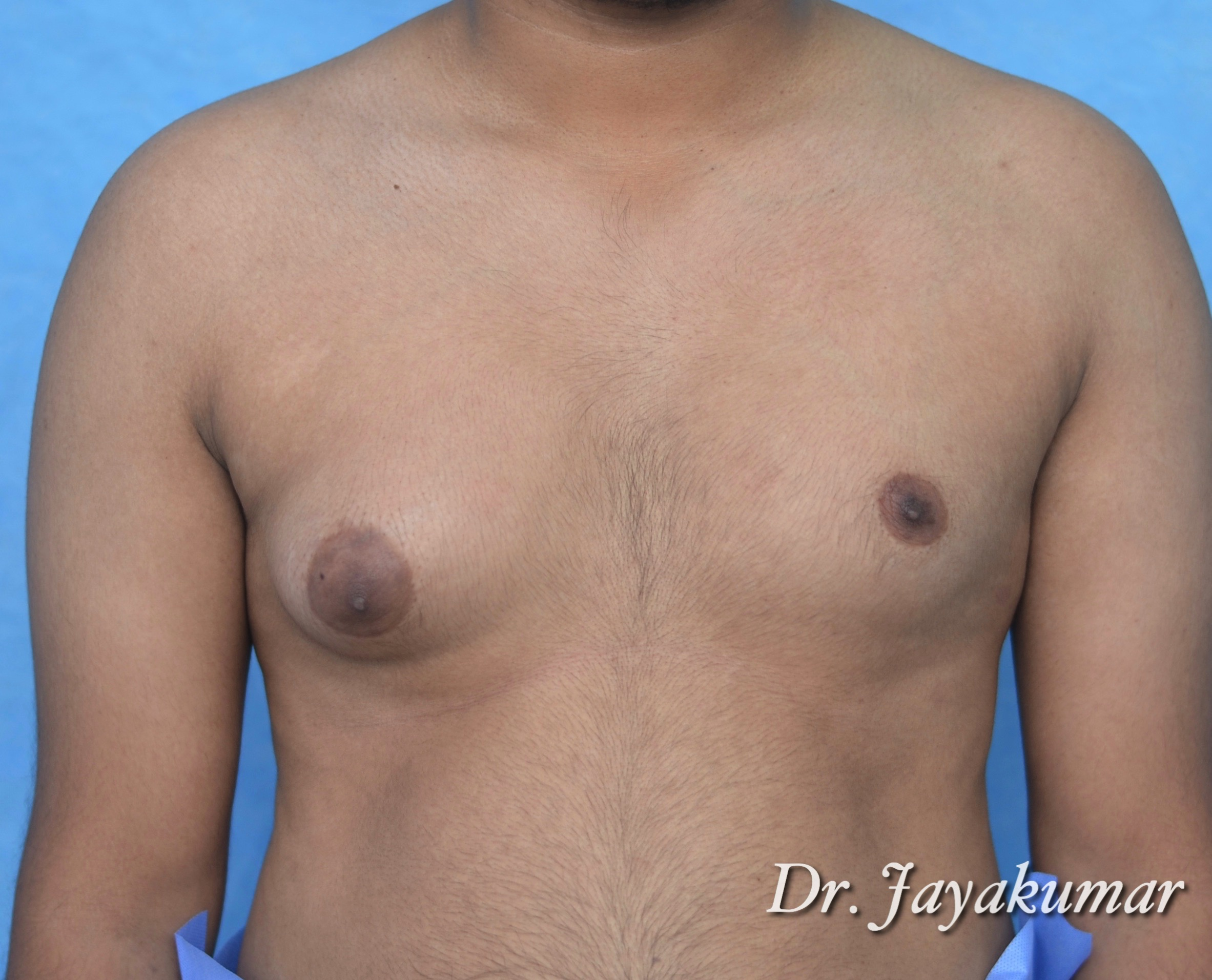 Before-Gynaecomastia