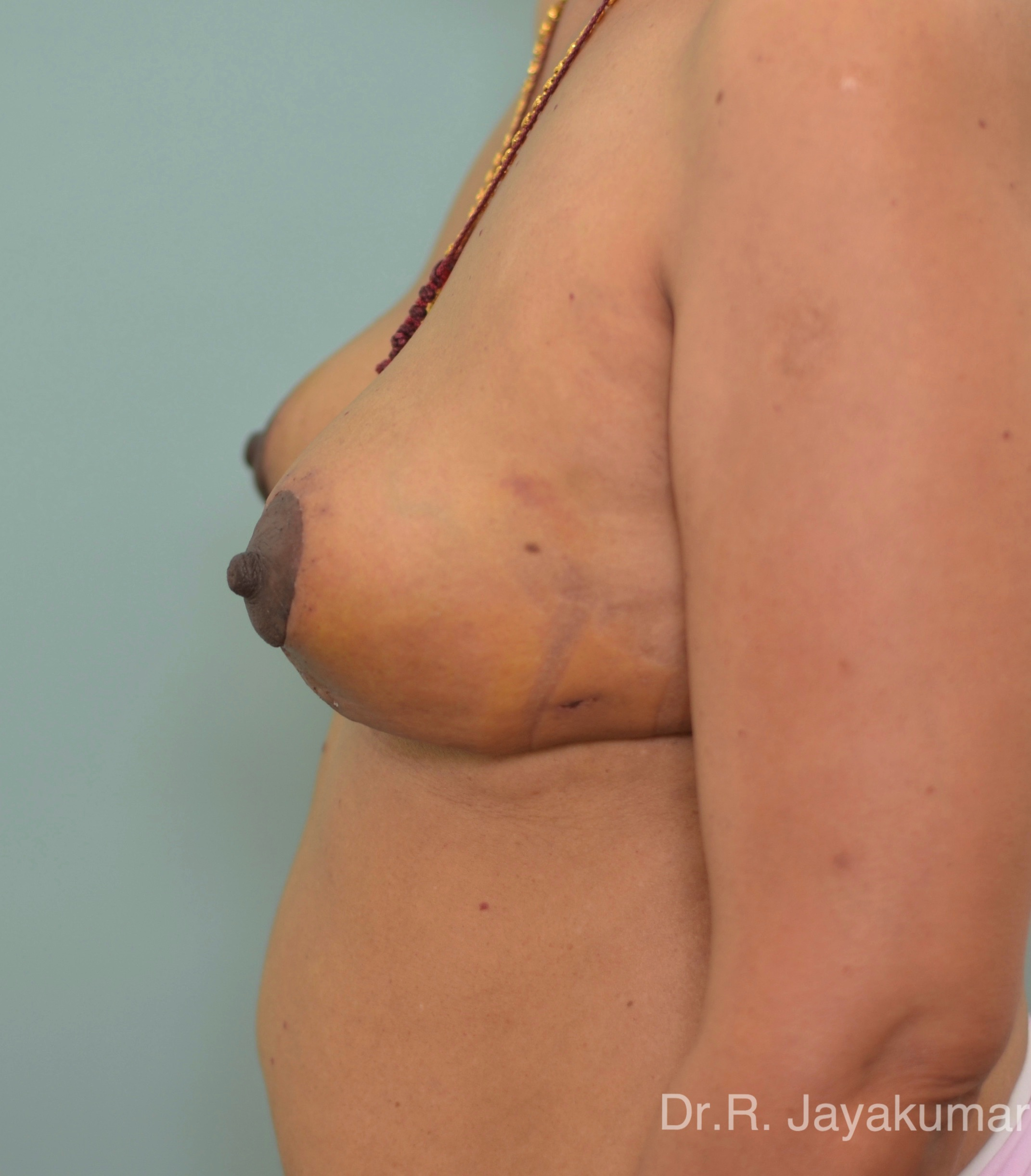 After-Mastopexy