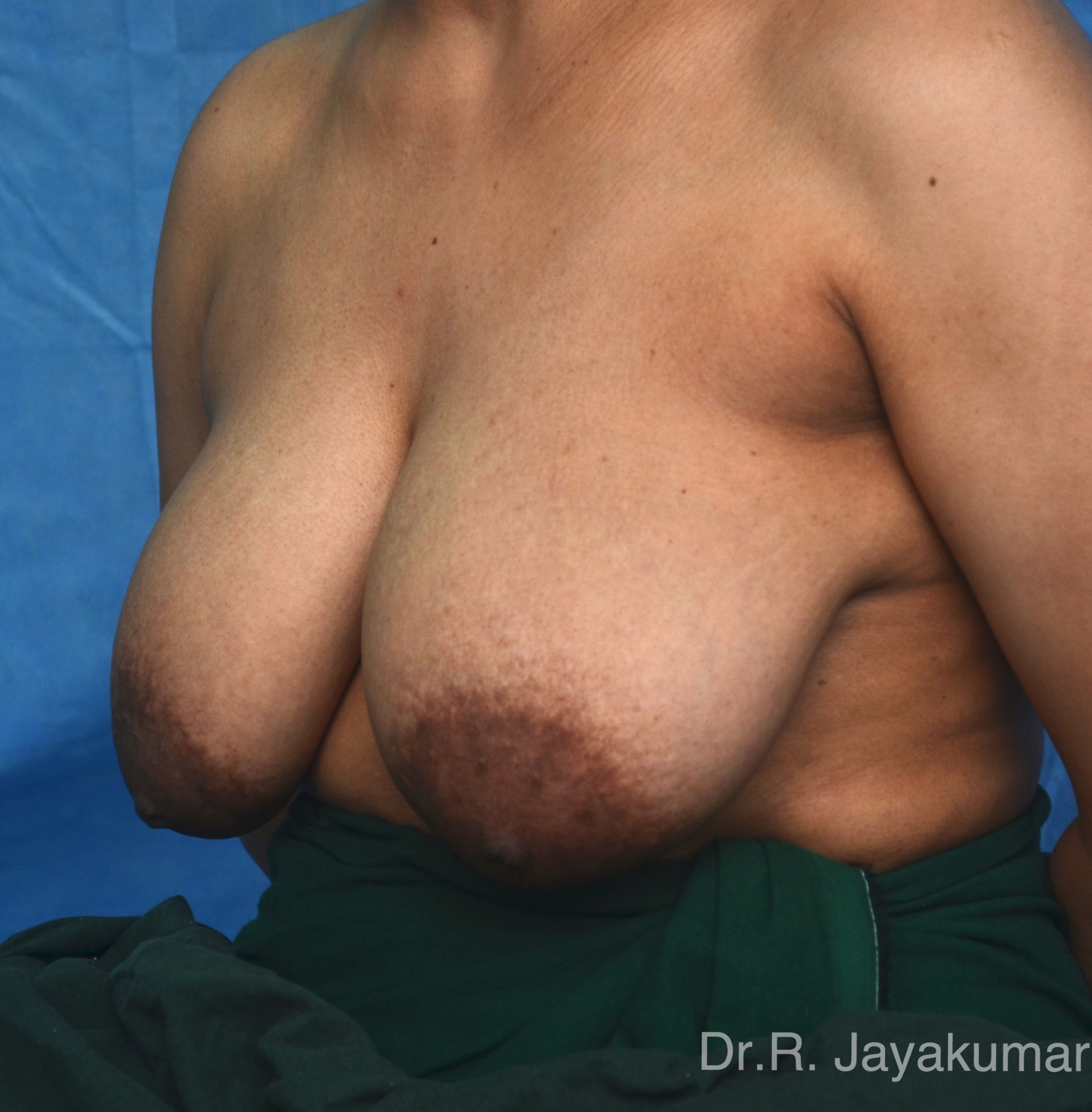 Before-Mastopexy