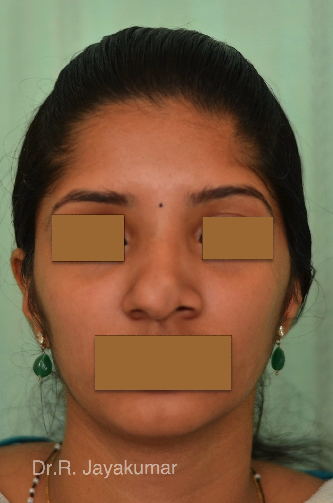 Before-Nose Tip