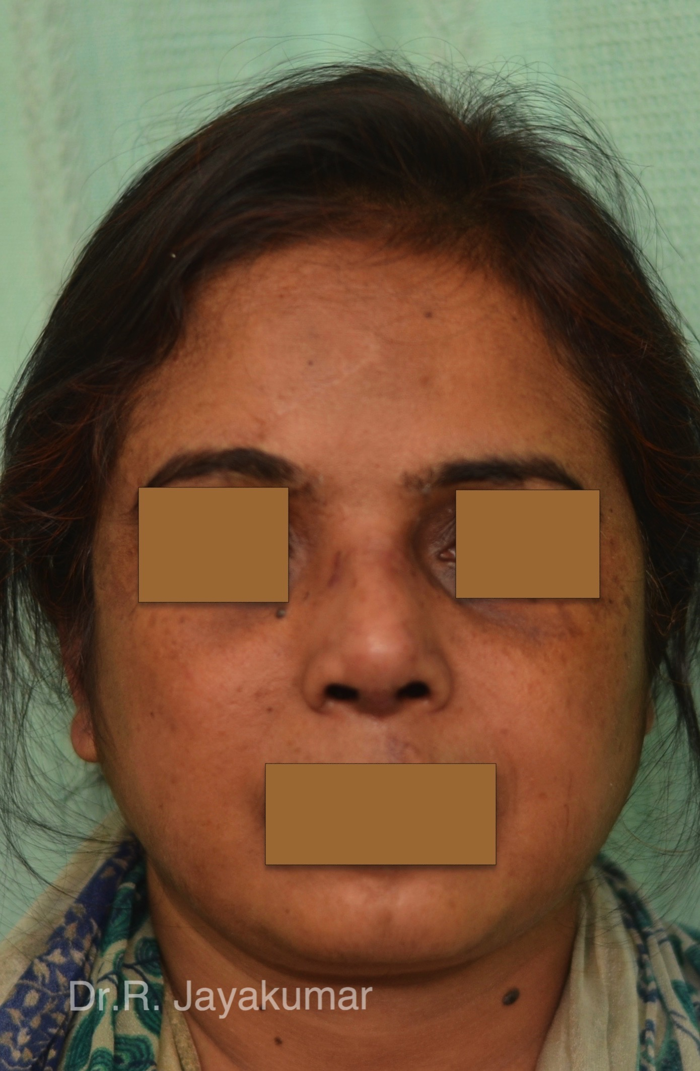 After- Post traumatic nose