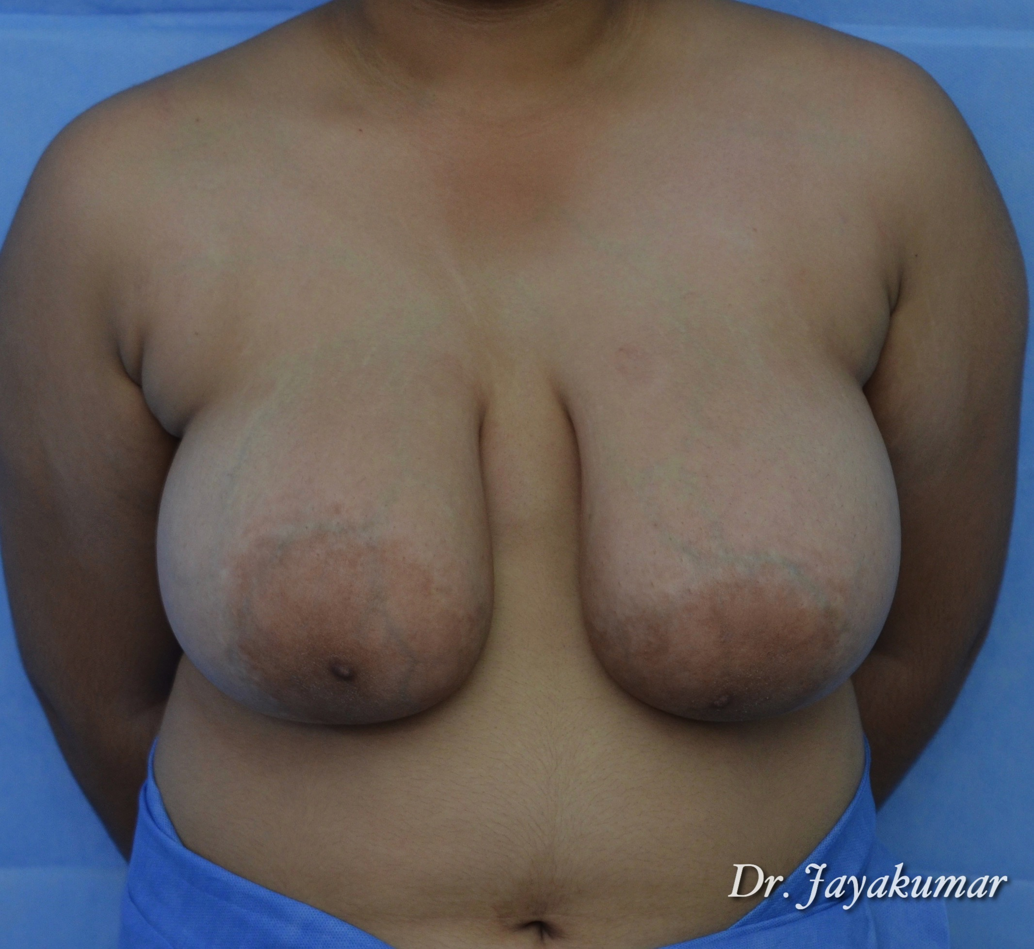 Before-TUBEROUS BREASTS