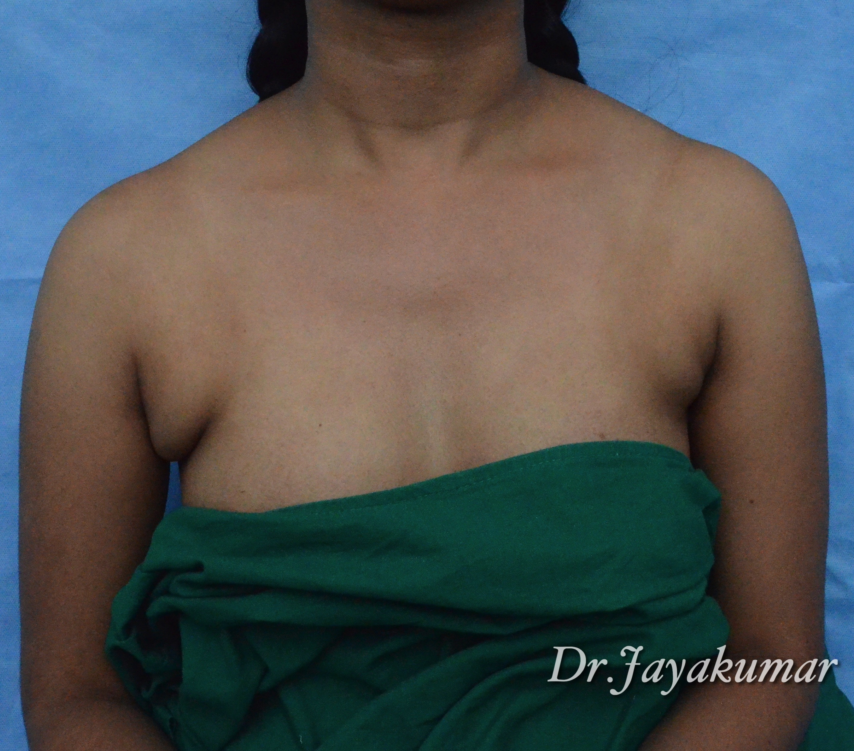 Before-Axillary Breast