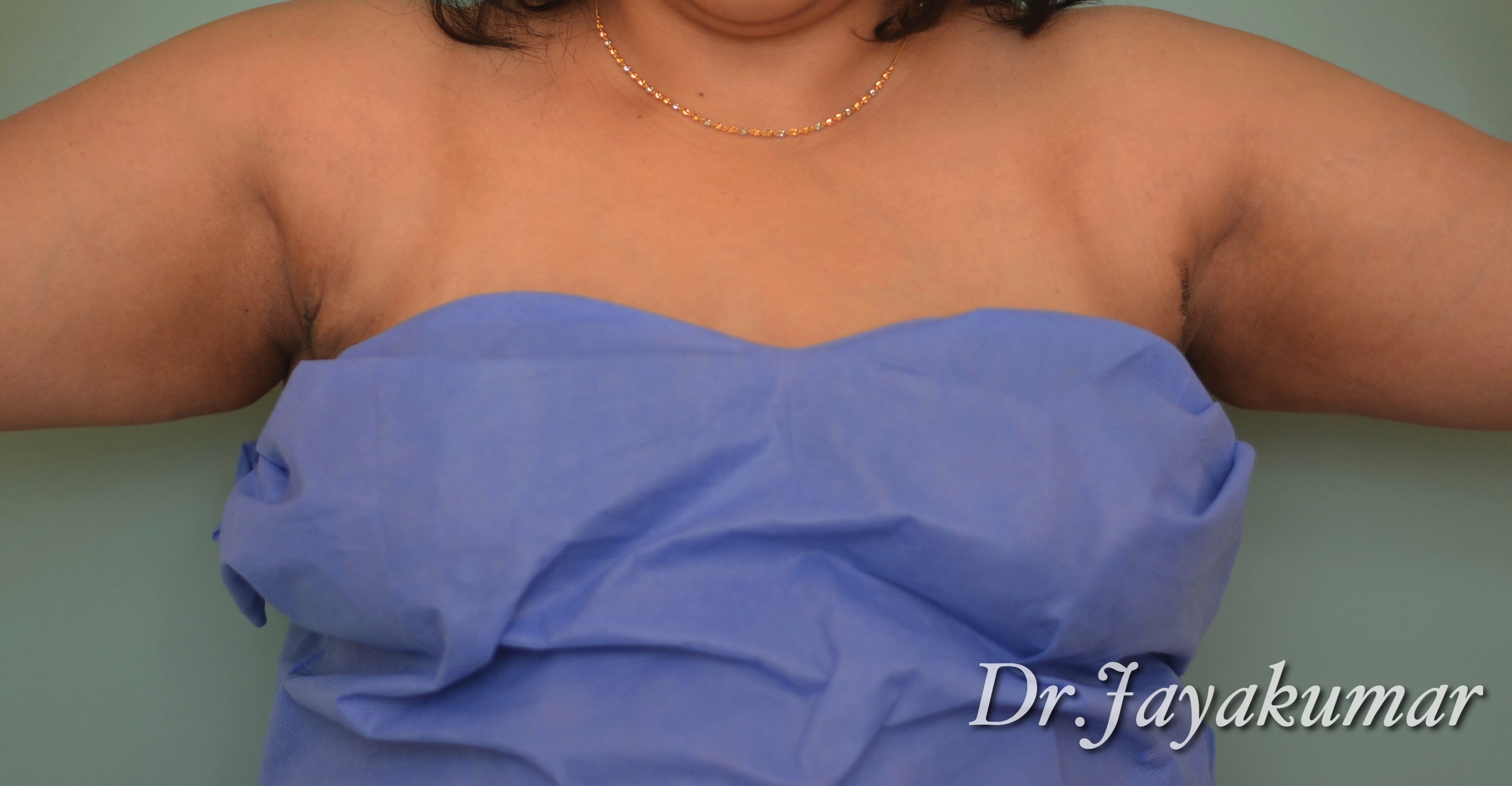 After-Axillary Breast